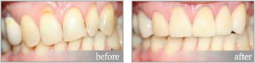 Oral hygiene before and after justSMILE Ramsgate Sydney NSW