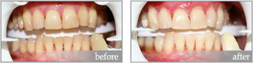 zoom whitening before and after #3
