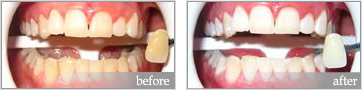 zoom whitening before and after #1