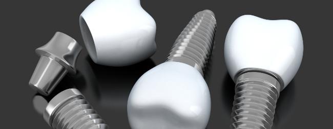 Graphic of dental implants Sydney NSW