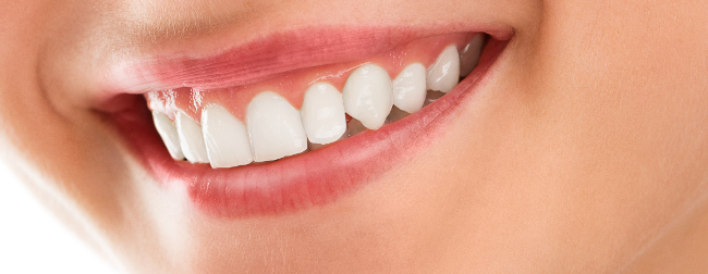 gummy smile treatment at justSMILE Sydney NSW