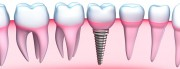 The-Permanent-Solution-to-Missing-Teeth - Dental Implants in Sydney NSW