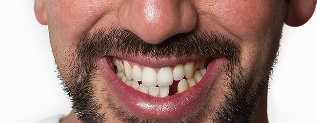 What happens if you  ignore a broken or chipped tooth