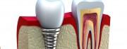 october dental implants comparison graphic, dental implants Sydney NSW