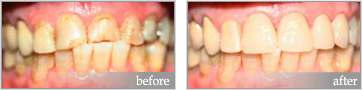 Dental restoration before and after Ramsgate Sydney NSW