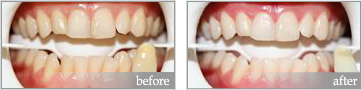 zoom whitening before and after #2