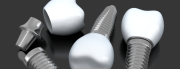 Graphic of dental implants Sydney NSW
