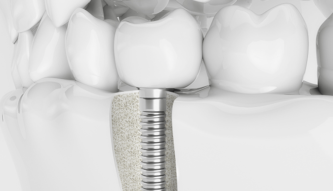 Model cross section of a dental implant