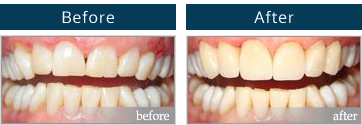 Zoom teeth whitening before and after #4