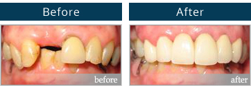 Dental implant before and after #1 Sydney NSW